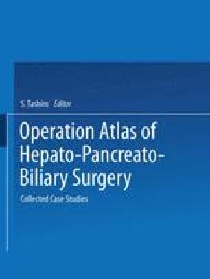 Operation Atlas of Hepato-Pancreato-Biliary Surgery