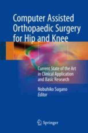 Computer Assisted Orthopaedic Surgery for Hip and Knee