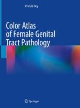 Pathology Vagina 2019 978-981-13-1029-4.jpg