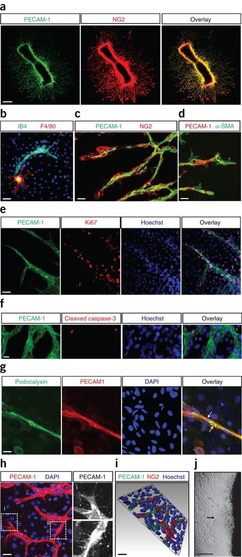 Immunofluorescence staining of metatarsals.