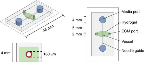 Human engineered microvessel platform.