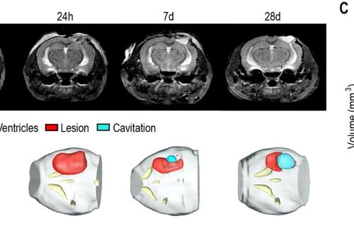 In vivo metabolic imaging of Traumatic Brain Injury