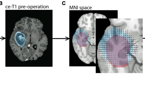 The Direction of Tumour Growth in Glioblastoma Patients | Scientific