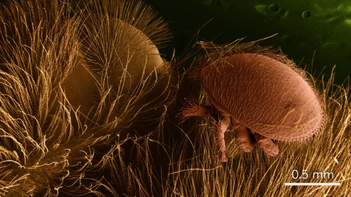 The varroa mite (shown sitting on honeybee hairs in this scanning electron microscope image) is honeybee parasite that can spread viruses.